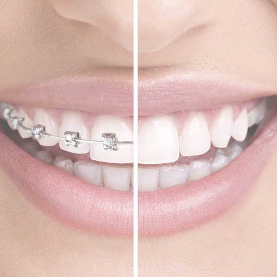 ortodoncia-especialidades