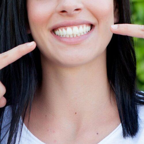 oferta blanqueamiento dental Ibiza